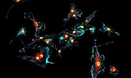 nuclei: Microfilaments (blue), mitochondria (red), and nuclei (yellow) in fibroblast cells