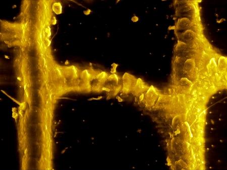 microscopy: Epidermis of grasshopper wing, scanning electron microscopy