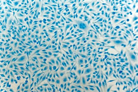 cervicales: HeLa células de cáncer de cuello de útero, teñidas con azul de Coomassie, bajo el microscopio.