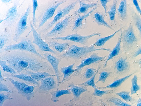 malignant: HeLa cervical cancer cells, stained with Coomassie blue, under microscope.
