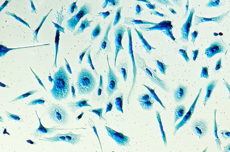 malignant cells: PC-3 human prostate cancer cells, stained with Coomassie blue, under differencial interference contrast microscope.