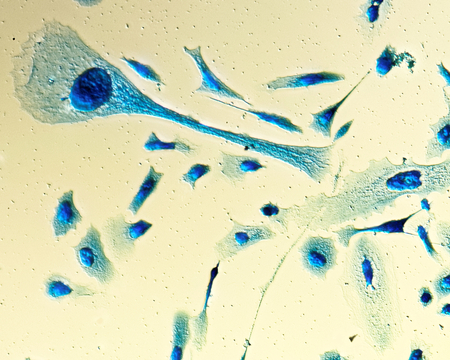 aberrant: PC-3 human prostate cancer cells, stained with Coomassie blue, under differencial interference contrast microscope.