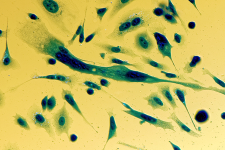 organelle: PC-3 human prostate cancer cells, stained with Coomassie blue, under differencial interference contrast microscope.