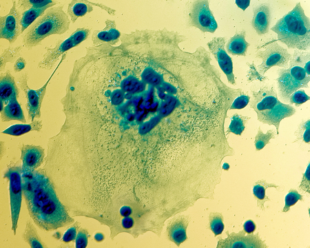PC-3 human prostate cancer cells, stained with Coomassie blue, under differencial interference contrast microscope.