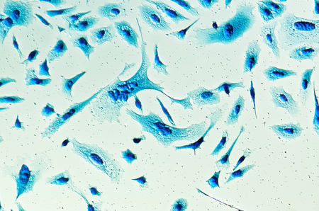 malignant: PC-3 human prostate cancer cells, stained with Coomassie blue, under differencial interference contrast microscope.