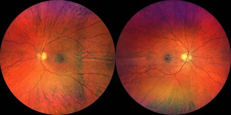 Photograph of the Fundus Oculi: left and right eye