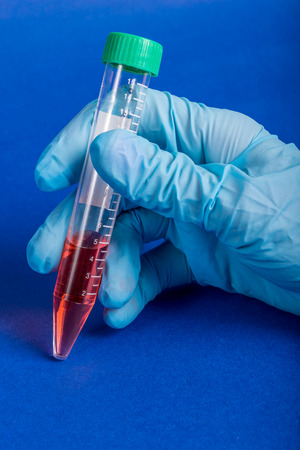 laboratory labware: scientist holding  tube with blood analysis for diagnostic
