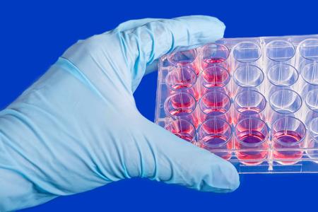 laboratory labware:  Human stem cells in biomedical scientific laboratory. Stock Photo