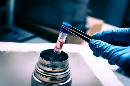 A Liquid Nitrogen bank containing suspension of stem cells. Cell culture for the biomedical diagnostic. Foto de archivo
