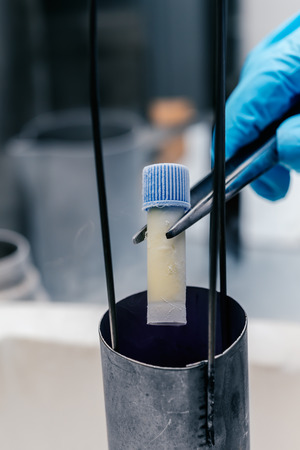 biomedical: Gloved hand hold the tube with cell suspension for cryopreservation. A Liquid Nitrogen bank containing suspension of stem cells. Cell culture for the biomedical diagnostic.