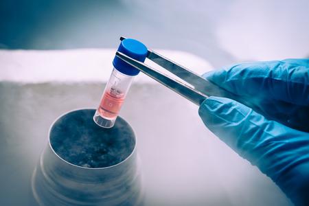 resfriado: Un banco de nitr�geno l�quido que contiene la suspensi�n de c�lulas madre. Cultivo de c�lulas para el diagn�stico biom�dico. Foto de archivo