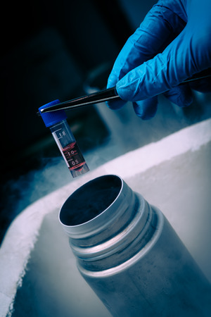 Scientist working in  Liquid Nitrogen bank  with suspension of stem cells. Cell culture for the biomedical diagnostic.