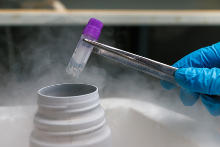 Gloved hand hold the tube with cell suspension for cryopreservation. A Liquid Nitrogen bank containing suspension of stem cells. Cell culture for the biomedical diagnostic.