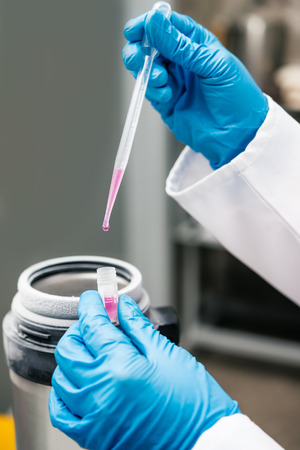 Scientist holding container with suspension of stem cells for cryopreservation.