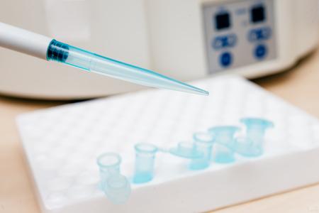 biomedical: Tube for the biomedical diagnostic. Laboratory analysis. Stock Photo