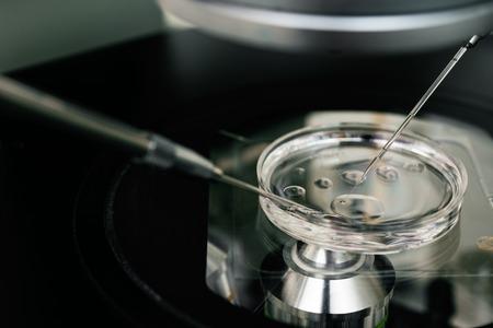 esperma: Microscopio para el proceso de la fecundaci�n in vitro de cerca. Equipo en laboratorio de fertilizaci�n, fertilizaci�n in vitro. Equipos de laboratorio de alta tecnolog�a. Foto de archivo