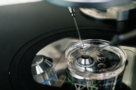 in vitro: Microscopio para el proceso de la fecundación in vitro de cerca. . Equipo en laboratorio de fertilización, fertilización in vitro. Foto de archivo