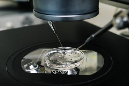 espermatozoides: Microscopio para el proceso de la fecundación in vitro de cerca. Equipo en laboratorio de fertilización, fertilización in vitro. Equipos de laboratorio de alta tecnología. Foto de archivo