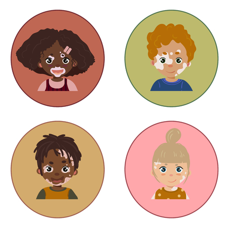 Group of children with vitiligo skin disease. Portraits. Vector illustration