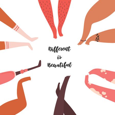 Different is beautiful. Diverse disabled, normal, amputee, mutli-ethnic legs. Vitiligo and hairy, with prosthesis, tattoed and black. Group of diverse people legs, standing together. Vector flat
