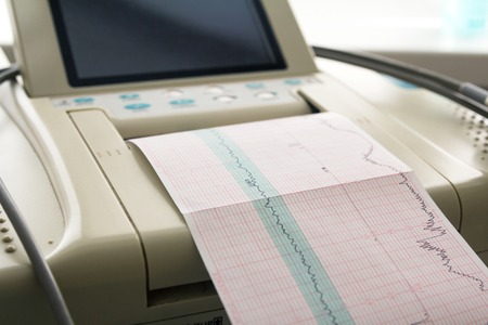 fetal: Printing of cardiogram report coming out from Electrocardiograph in labour ward. Fetal monitor
