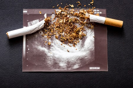 Broken cigarette on a picture of pregnancy uzi, smoking and pregnancy, gestation 스톡 콘텐츠