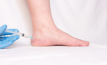 doctor makes a blockade in the heel spur of a woman with anti-inflammatory hormone medication, close-up, injection