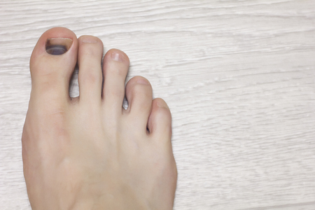 Injury to the nail on the foot, close-up, hematoma under the nail, copy space, trauma, haematoma