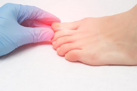 Il medico esamina un dito del piede dolorante infetto da infezione fungina, primo piano, onicomicosi, infezione Archivio Fotografico