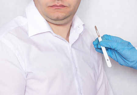 A doctor holds a scalpel on the background of a patient with a double chin, plastic surgery and plastic, close-up