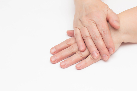 The hands of an elderly woman on a white background which has skin problems, dry and cracked skin on the hands, wrinkles, close-up, isolate, copy space 版權商用圖片