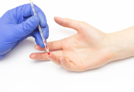 The doctor takes a general clinical blood test from the patient with a finger on the determination of the blood composition for immunity and cholesterol, close-up, immunoglobulin