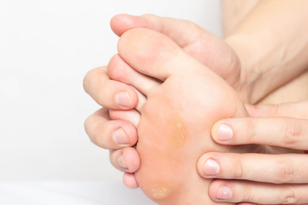 Man shows problem skin on the foot and sole of the foot dry and callous skin with mazols with a stem, close-up, copy space Banco de Imagens