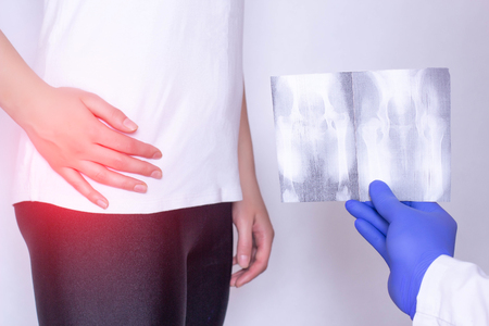 Doctor holds x-ray picture on the background of a girl with a sore hip joint and intervertebral hernia, fibromyalgia, close-up, ultrasound diagnostics Banco de Imagens