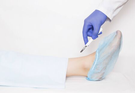 A doctor holds a scalpel on the background of the ankle joint on the leg. A concept of modern surgery for endoprosthetics of the joints and the backstop of the foot, copy space, arthroplasty