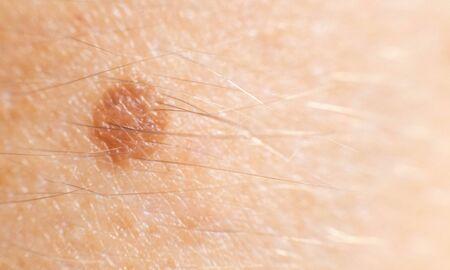 Small mole nevus on human skin, carcinoma. Background, macro melanoma