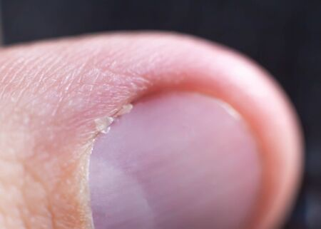 Burr and cuticle on a human nail, closeup. Background, macro, deformed