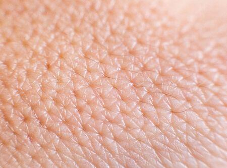 Primer plano de la piel humana aceitosa porosa. Poros dilatados en la piel, fondo, macro, piel mixta