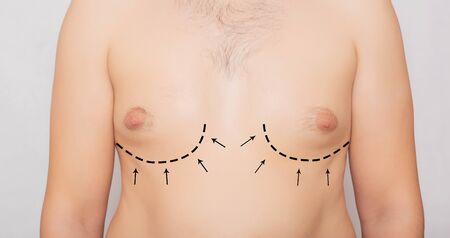 Male body, male breast plastic, gynecomastia. Male Breast Adjustment, Plastic Surgery Background Stock Photo