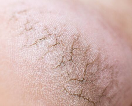 Dry cracked skin on the heels of a person s legs, close-up. Concept of serious skin diseases and fungal infection, hypovitaminosis, iron-deficiency anemia Stock Photo