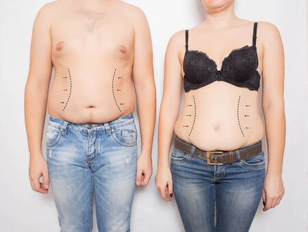 Man and woman overweight and obese on his stomach on a white background. Abdominoplasty and liposuction plastic surgery concept, markers on the abdomen, medic