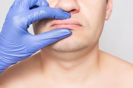 Doctor plastic surgeon examines the lips of a male patient. The concept of changing the shape and size of lips in men