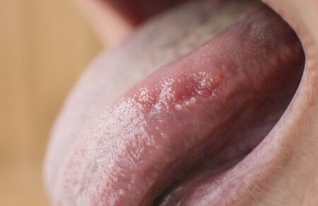 A closeup of a diseased tongue in which a red spot glosses. Burning and discomfort of the tongue, lupus erythematosus