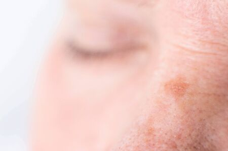 age spots on the face of a woman with dry skin and wrinkles, background, macro 스톡 콘텐츠