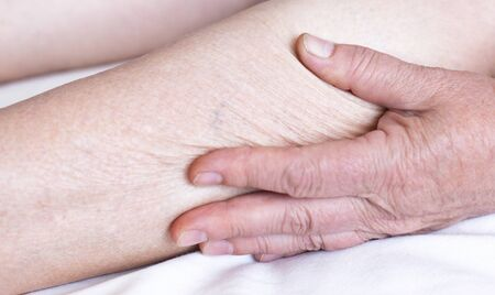 Dry skin on the legs and arms of an elderly woman. The concept of skin care and hygiene in the elderly