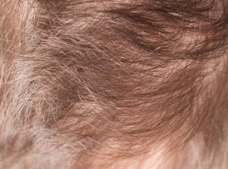 brown hair on a human head, closeup, background