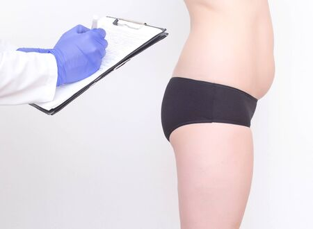 A nutritionist examines a patient with weight problems. The concept of a healthy lifestyle and diet, anorexia, plastic surgeon 스톡 콘텐츠