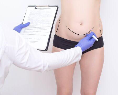 Doctor plastic surgeon marks with a felt-tip pen a marker for a surgical operation to remove fat on the abdomen of a girl. The concept of the modern procedure in plastic surgery abdominoplasty 스톡 콘텐츠