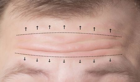 Close-up of male forehead with wrinkles and markers for surgery. Forehead plastic surgery concept, forehead wrinkle lift