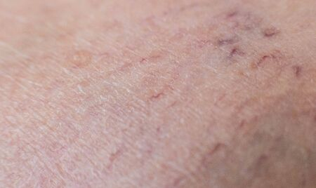 Vascular asterisk on the patient s skin. The concept of varicose veins in humans, background, macro